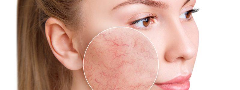 rosacea couperose verminderen
